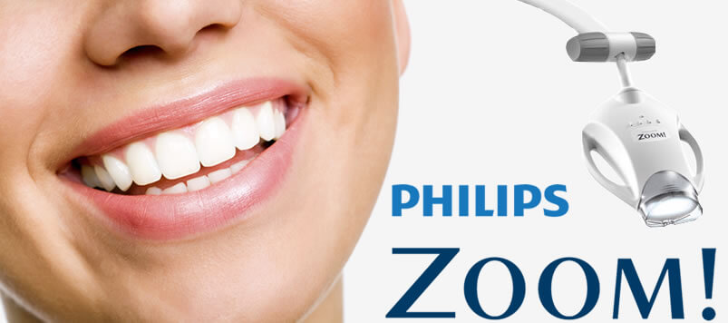 blanqueamiento-dental-zoom